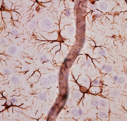 Astrocytes and blood vessels